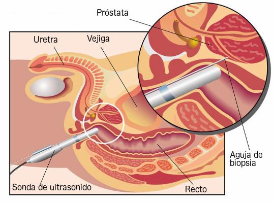 Biopsia de Próstata en Chihuahua